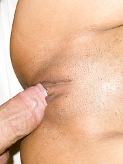 Condom Removal ST